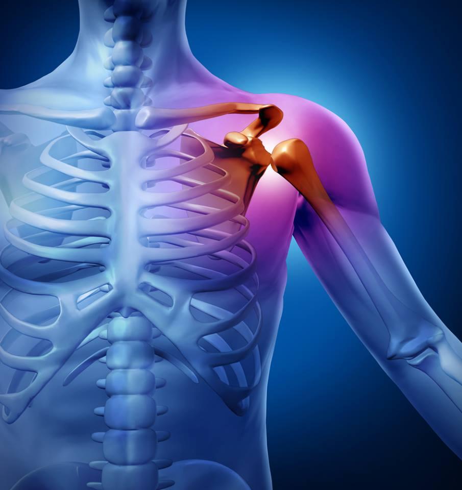 fájdalom a vállízület csontritkulásában
