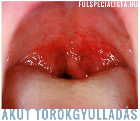 torokgyulladás kezelés házilag)