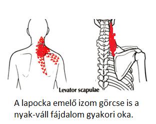 akut fájdalom a nyaki és a vállízületekben)
