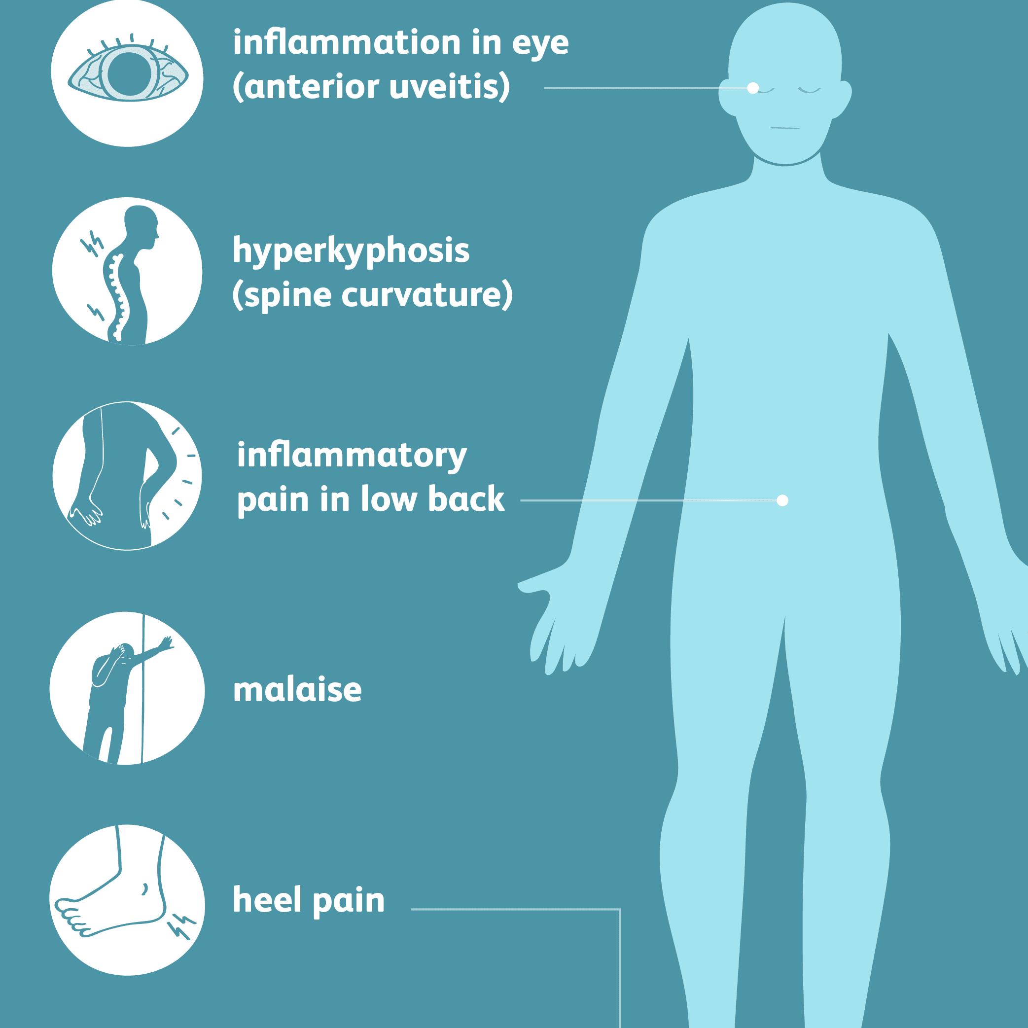 Klinikai vizsgálatok a Spondylitis, ankylose