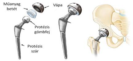 az ortopéd kezel a csípőízület coxarthrosisát)