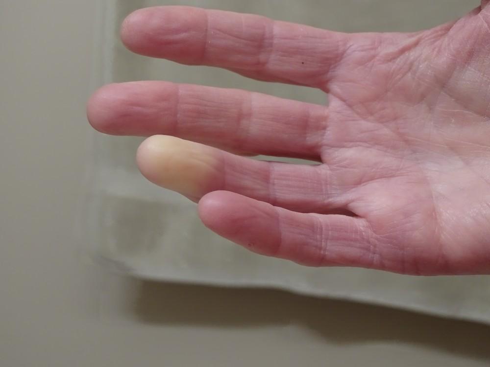 gyulladáscsökkentő gyógyszer izületi gyulladásra hogyan lehet eltávolítani az ujjak ízületi fájdalmait