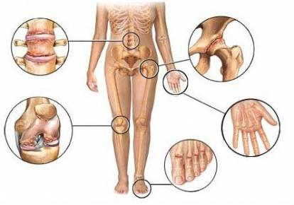 az ízületek deformáló artrózisa 2 fokos
