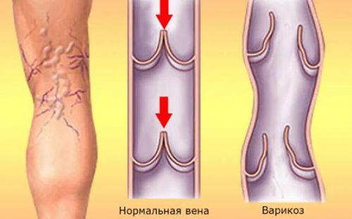 térdgyulladás tinédzserben)