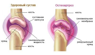 térdízületek gonarthrosisának 1 fokos kezelése
