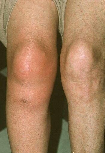 ízületi fájdalom szindróma rheumatoid arthritis symptoms