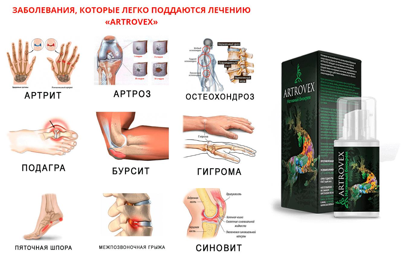 ízületi fájdalomkrémek ár)