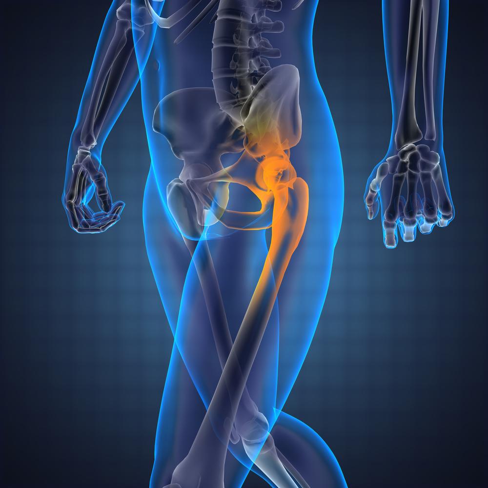 bal oldali csípőfájdalom