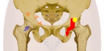 mi a csípő dysplasia kezelés)