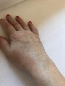 Nyáktömlő-gyulladás / Bursitis - Fájdalomközpont