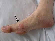 a lábfej lábízületeinek ízületi gyulladása)