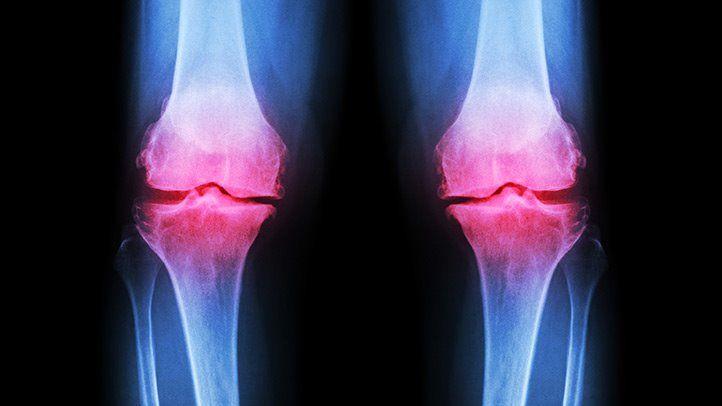 osteoarthritis knee icd 10)