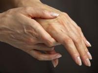 Mely orvos kezeli az alsó végtagok artrózisát