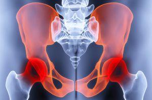 csípőízület deformáló artrózisának kezelése