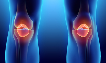 az artrózis kezelésének típusai