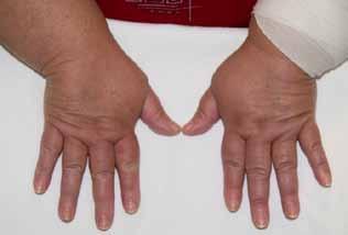diffúz kötőszöveti betegségek osztályozása
