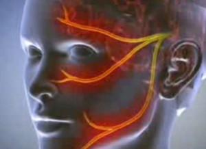 az ízületek deformáló artrózisa 2 fokos)