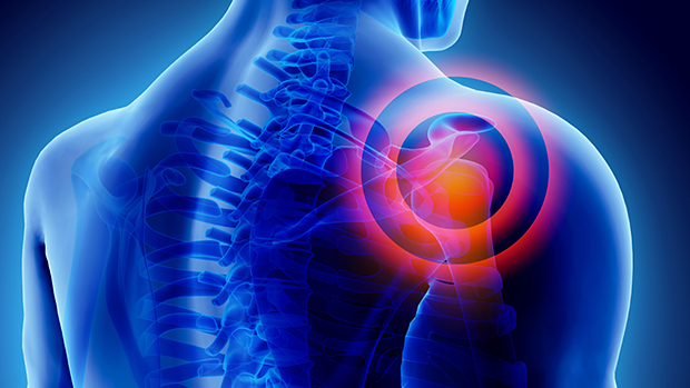 akut fájdalom a nyaki és a vállízületekben