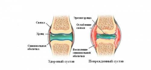 a térdízület artrózisával guggolhatunk)