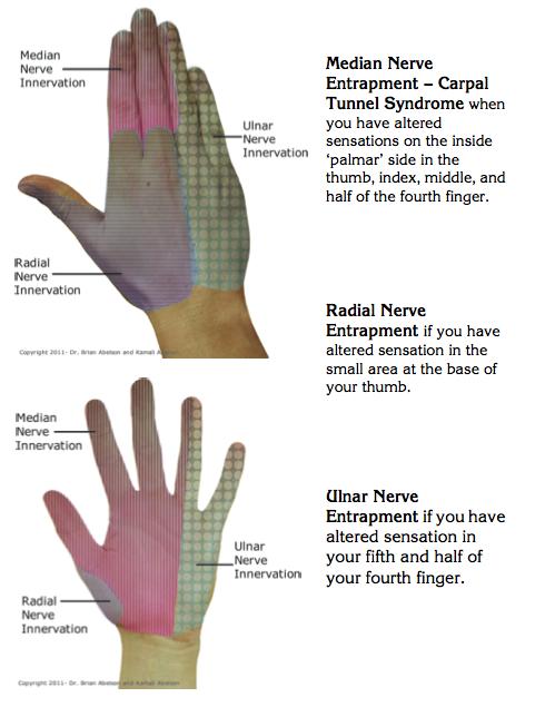 carpal arthritis kezelése
