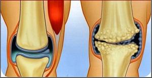 térdízületi kezelés artrózisának kezelése