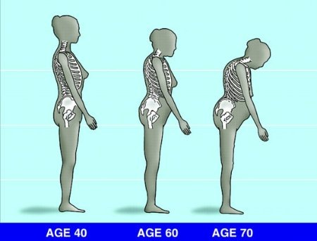 csontritkulás tünetei és kezelése)