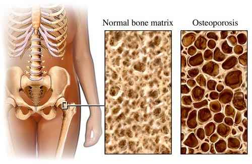 a csípő és térd artrózisának kezelése mozgó fájdalom a lábak ízületeiben