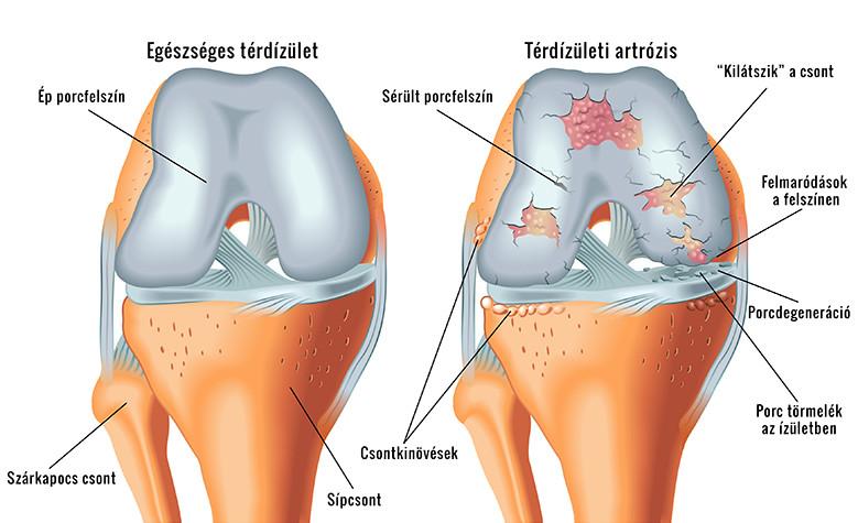 térdfájdalom csípőpótlás után)