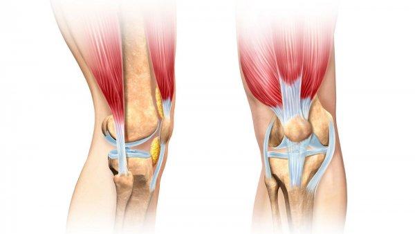 Mi a teendő, ha a lábszárakat a lábon törjük? - Térd