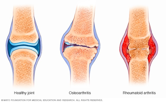 Hüvelykujj rheumatoid arthritis. Hüvelykujjfájdalom okai - Egészség | Femina