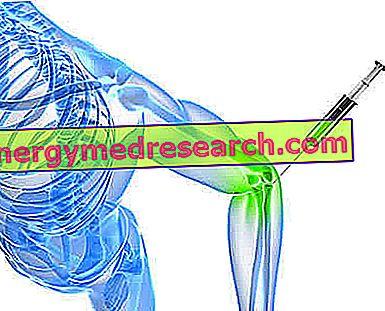 hogyan lehet enyhíteni az ízületi gyulladást osteochondrosisban mi kapcsolja be az ízületeket