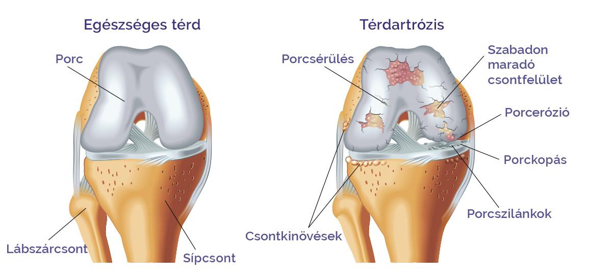 don az artrózis kezelésében