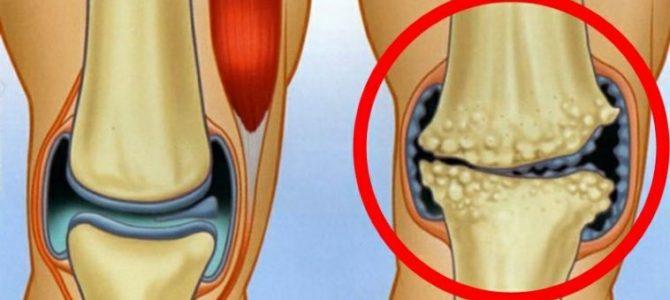 konzultáció artrózis kezelésére)