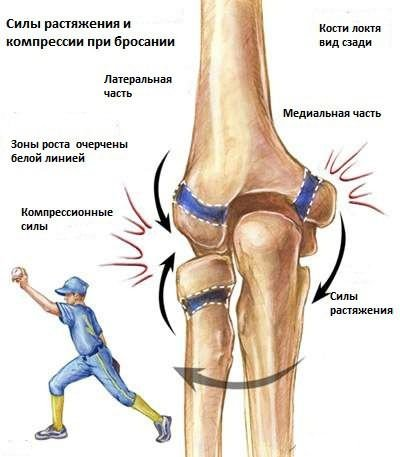 könyökfájás a sportolókban)