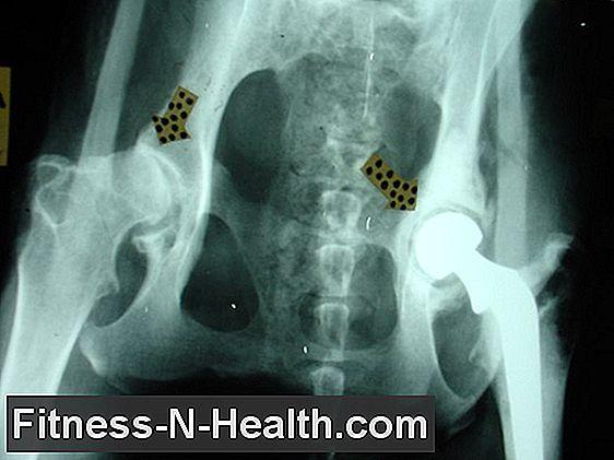 a coxarthrosis a csípőízület krónikus betegsége)