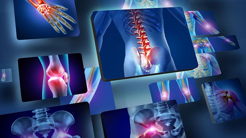térdízületi betegség és tünetei duzzadt ízületek a jobb oldalon