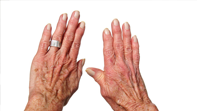 psoriasis arthritis - Hungarian translation – Linguee
