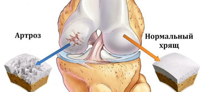 a térdízület 2. fokú artrózisa)