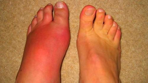 a nagy lábujj fájó ízületének kezelése)