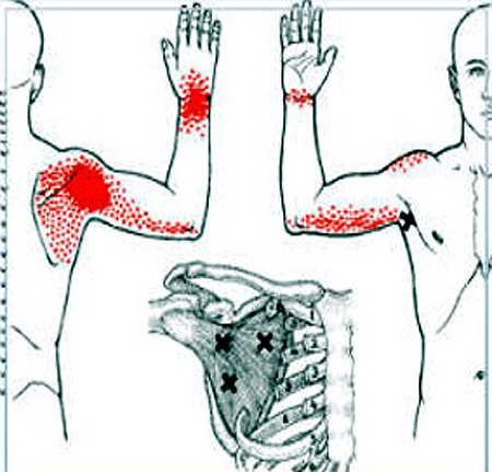 vállfájdalom lelki okai milyen gyorsan előrehalad a csípőízület artrózisa