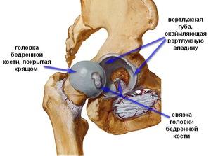 deformáló csípőízület