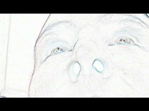 a térdízület 2. szakaszának artrózisa terd szalag huzodas