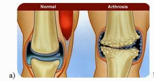 Porcfelszín károsodások (porckopás, artrózis) | Pasamed