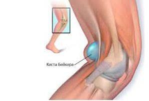 artrózis térdmozgással