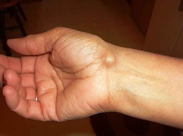 csukló izületi gyulladás kezelése