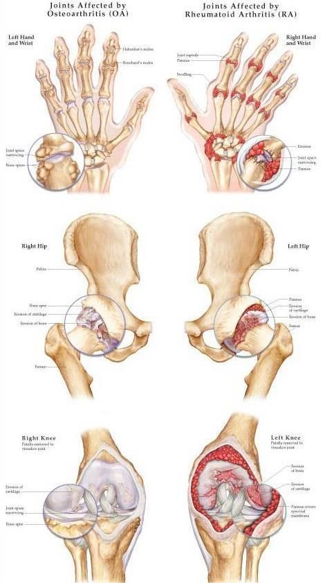 arthrosis artritisz kezelések)