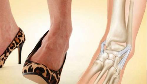 Shin törés elmozdulással: lemez műtét és rehabilitáció - Diszplázia