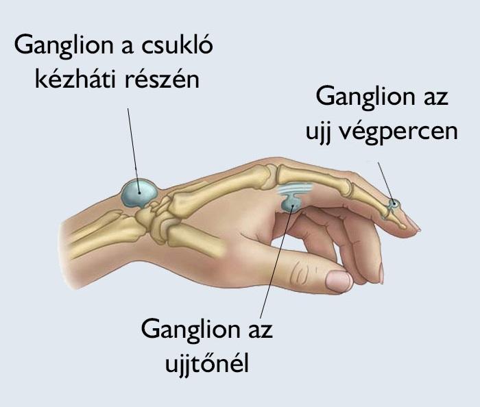 lábízület kezelése gyógyszerekkel)
