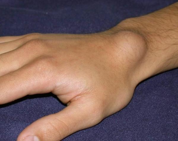 a csukló tünetei és kezelése)