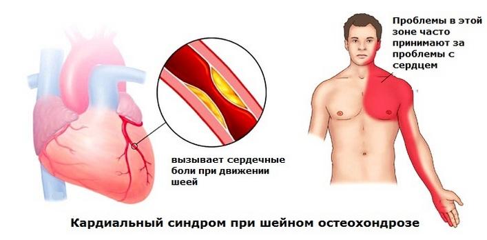 név kenőcs a nyaki gerinc osteochondrozisához